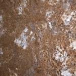 Artus Gold Granite Countertops Atlanta